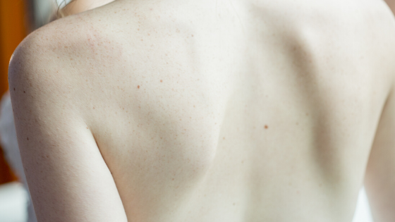 Ep. 19: La mujer y su cuerpo, con Samanta Graff